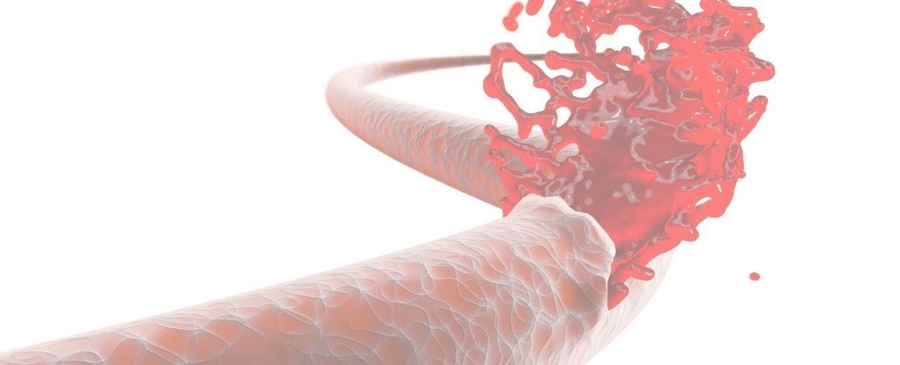 Prueba genética sangre bleedexoma
