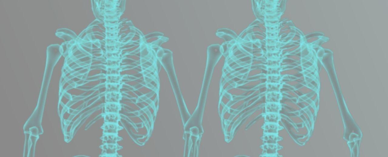 Prueba genética skeletoexoma